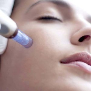 microneedling michigan collagen therapy