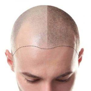 scalp micropigmentation michigan